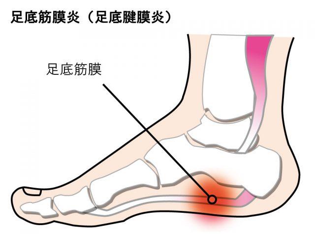 【かかとが痛い】足底筋膜炎が発症する場所と対処法