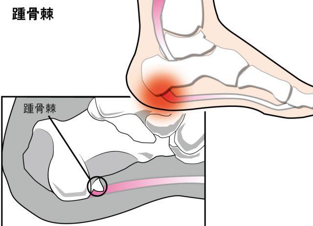 【かかとが痛い】踵骨棘が発症する場所と対処法