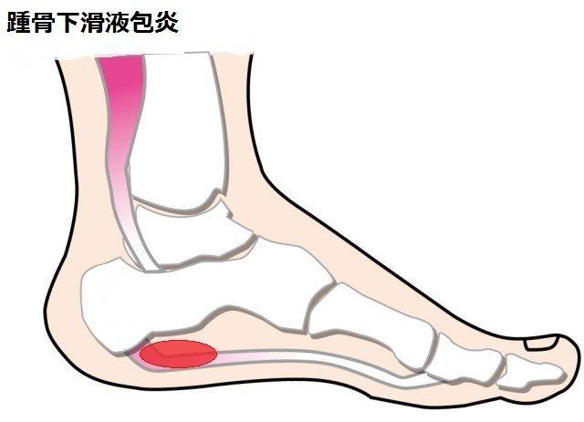 【かかとが痛い】踵骨下滑液包炎が発症する場所と対処法