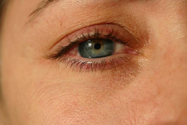 目の痛みを感じたら即チェックすべき病気と対処法