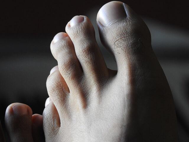 足のブツブツの5つの原因とキレイに治すための対処法